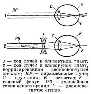 На рисунке представлены схемы хода лучей в глазе человека при нормальном зрении