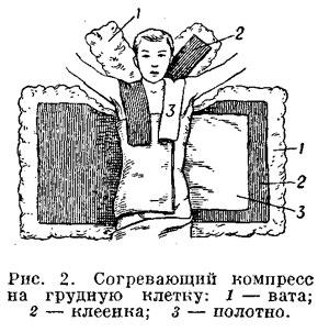 Как сделать водочный компресс ребенку от кашля